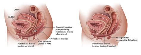 treating patients with pelvic floor dysfunction for professionals mayo clinic