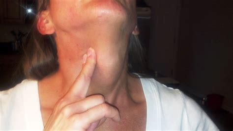 Lump In Throat Neck