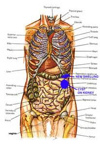 Cyst On Spleen Symptoms