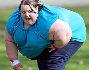 Bodies Deformed By Obesity