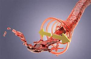 Рекомендации кардиологов при лечении гипертонии 2 степени