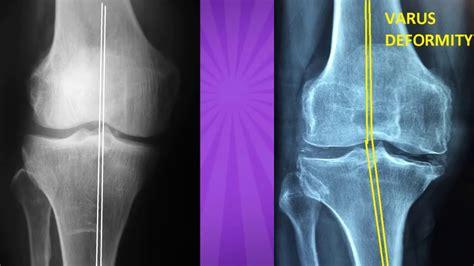 knee osteoarthritis ray arthritis stages diagnosis hindi