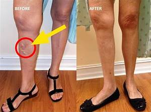 Grandmas Trick To Eliminating Varicose Veins
