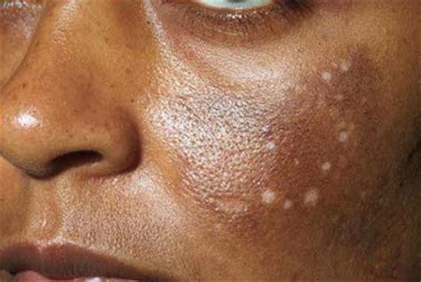 nettoyage de peau maison acn 233 kystique triacneal 87