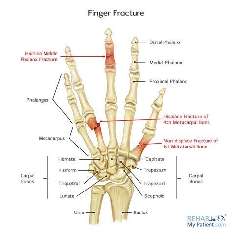 Finger Fracture Rehab Patient