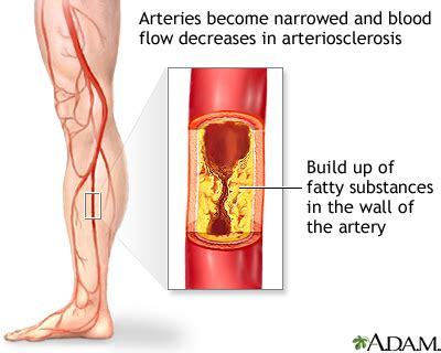 Atherosclerosis of the extremities: MedlinePlus Medical