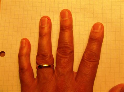 Early rheumatoid arthritis fingers