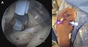 Supplemental Materials For Knotless Arthroscopic Repair Of