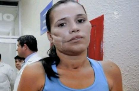 Karla Flores: 'Miracle Woman' had a LIVE grenade lodged in ...