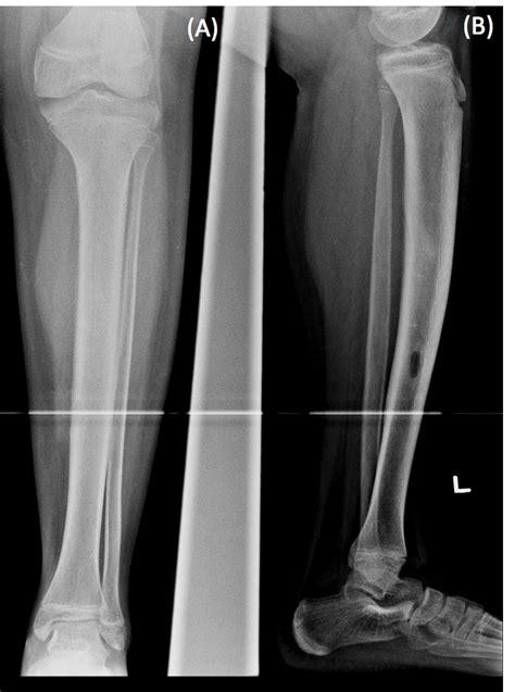 idiopathic intramedullary osteosclerosis consultant