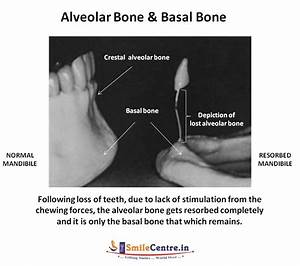 Basal Implantology | Dental Implants India