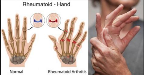 Causes of early arthritis