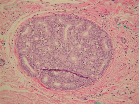Flashcards Breast What Is Seen On Histological