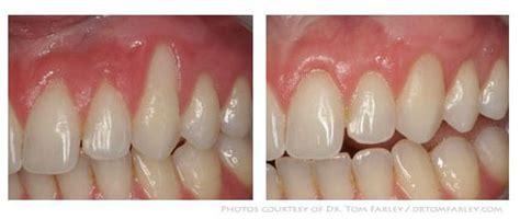 peridontist  princeton nj dental care princeton