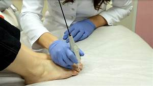 Эффективное средство против грибка ногтей на ногах уксус