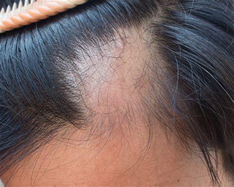 Alopecia Areata > Condition at Yale Medicine