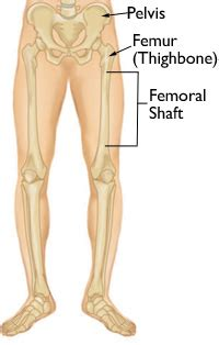femur shaft fractures broken thighbone duke ahn m d