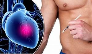 Efectele Steroizilor Anabolizanti Asupra Inimii