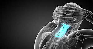 Neck Pain  U2013 What Is Cervical Spinal Stenosis