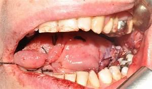 Lingua nera o rossa, villosa, che brucia, cause, terapia