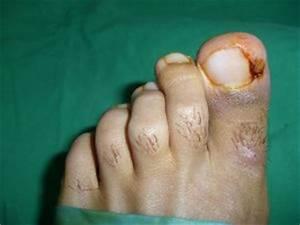 Ciuperca unghiei la picior