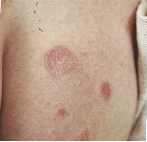hautausschlag bilder nesselsucht guertelrose kraetze
