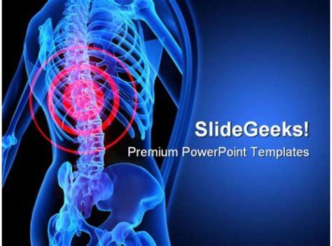 backache illustration medical powerpoint templates