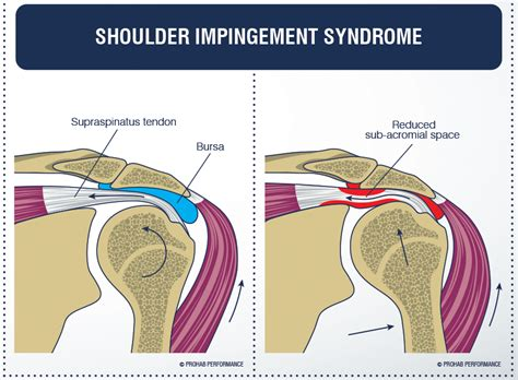 shoulder impingement 2019 notes and things