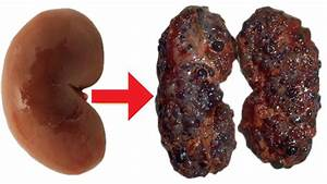 7 Habits That Damage Your Kidneys