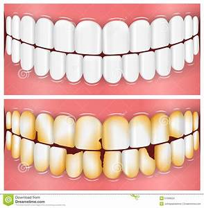 Teeth, Mouth, Dentistry stock illustration. Image of ...