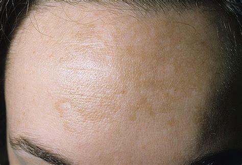 sun damaged skin pictures sunburn melanoma carcinoma