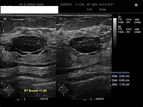 Fibroadenoma Of Breast Image Radiopaediaorg