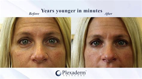 Plexaderm Before & After Transformation  Youtube