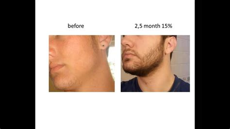 Stimulate Beard Growth with Minoxidil Before & After - YouTube