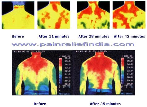 before after far infrared therapy healing pinterest