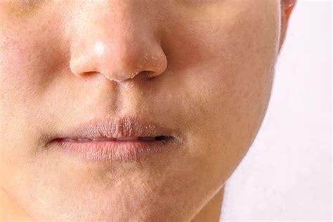 vitaminas  renovar la piel seca  desnutrida la