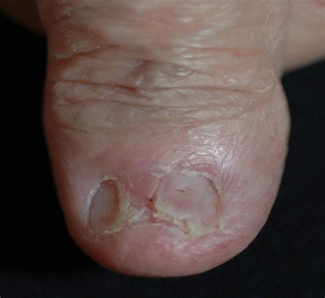 Toenail Separating From Nail Bed by Pre Clinical Sciences Prcr 627n Gt Meeks Gt Flashcards