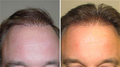 Hair Implants Louisville Tn 37777 Hair Plugs Corrective Surgery To Fix Bad Hair Transplants