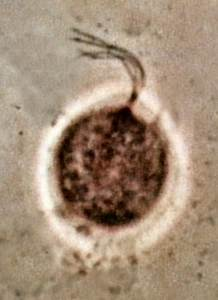 What does trichomoniasis discharge look like - Things You ...