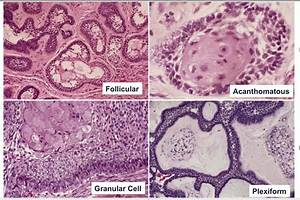 Flashcards - Odontogenic Tumors - Odontogenic Tumors ...