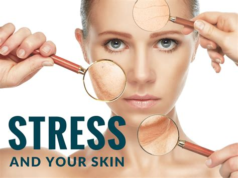 Stress & Your Skin