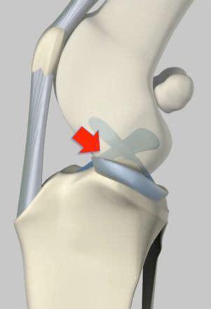 cruciate ligament disease  injury fitzpatrick referrals