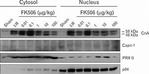 FK506 inhibits the calpain-mediated proteolytic cleavage ...