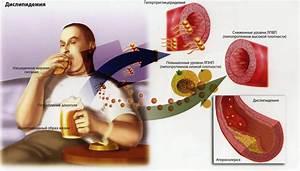 Лечение лимфостаза при диабете