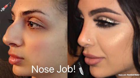nose job plastic surgery   sadiaslayy youtube
