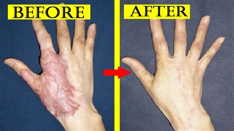 Home Remedies For Burn Scars