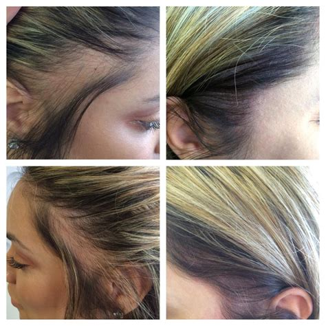 scalp tattoo  hair loss medicine  cosmetics adelaide