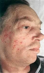 Гипертония и носовые кровотечения лечение