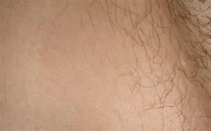 Покраснение голени при диабете лечение