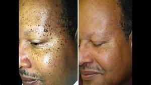 Moles Warts Skin Tags Removal Cream For Fast Results
